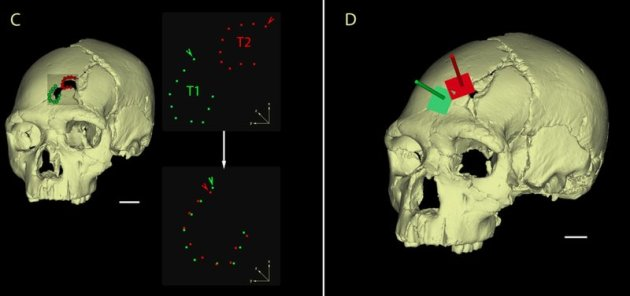 Researchers used a 3D model to analyze the skull's two fractures in detail. Photo: Sala et al., PLOS ONE Read more: http://www.smithsonianmag.com/science-nature/investigating-case-earliest-known-murder-victim-180955409/#hc2peOxEZoyFx4yj.99 Give the gift of Smithsonian magazine for only $12! http://bit.ly/1cGUiGv Follow us: @SmithsonianMag on Twitter